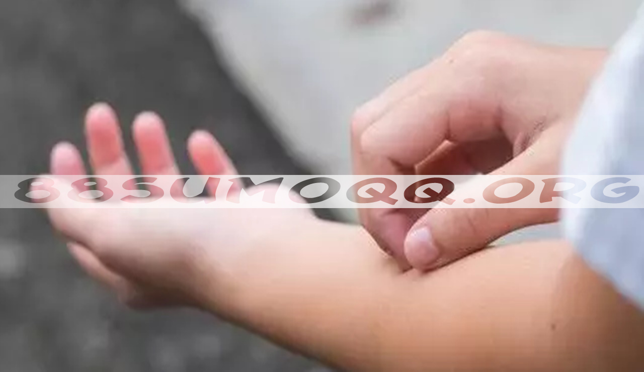 Nostalgia Penyakit Legend Zaman SD, Salah Satunya Kutuan!