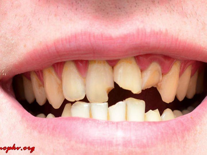 Makanan yang Bisa Menyebabkan Gigi Retak